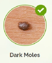 Skin Tag Pictures - Moles pictures