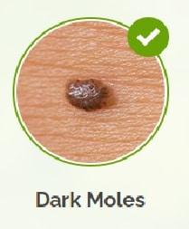 dark moles, congenital mole