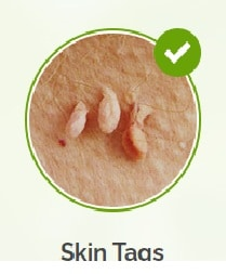 Skin Tag Pictures -skin tag
