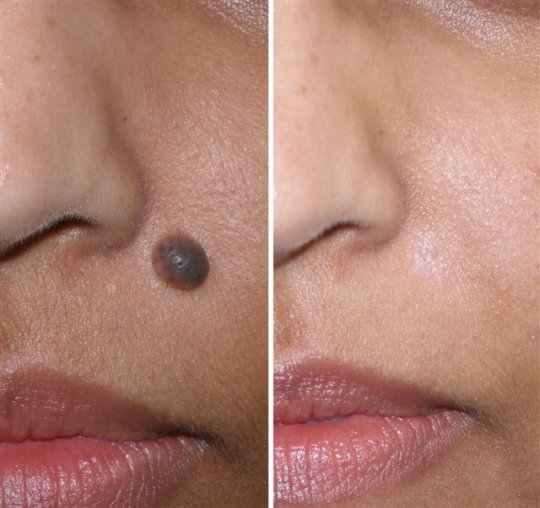 moles before and after