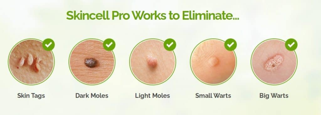 SKINCELL PRO - Removing Moles And Skin Tags :