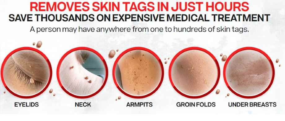 Skin Tag Removal Cream - Picture of Skin Tags